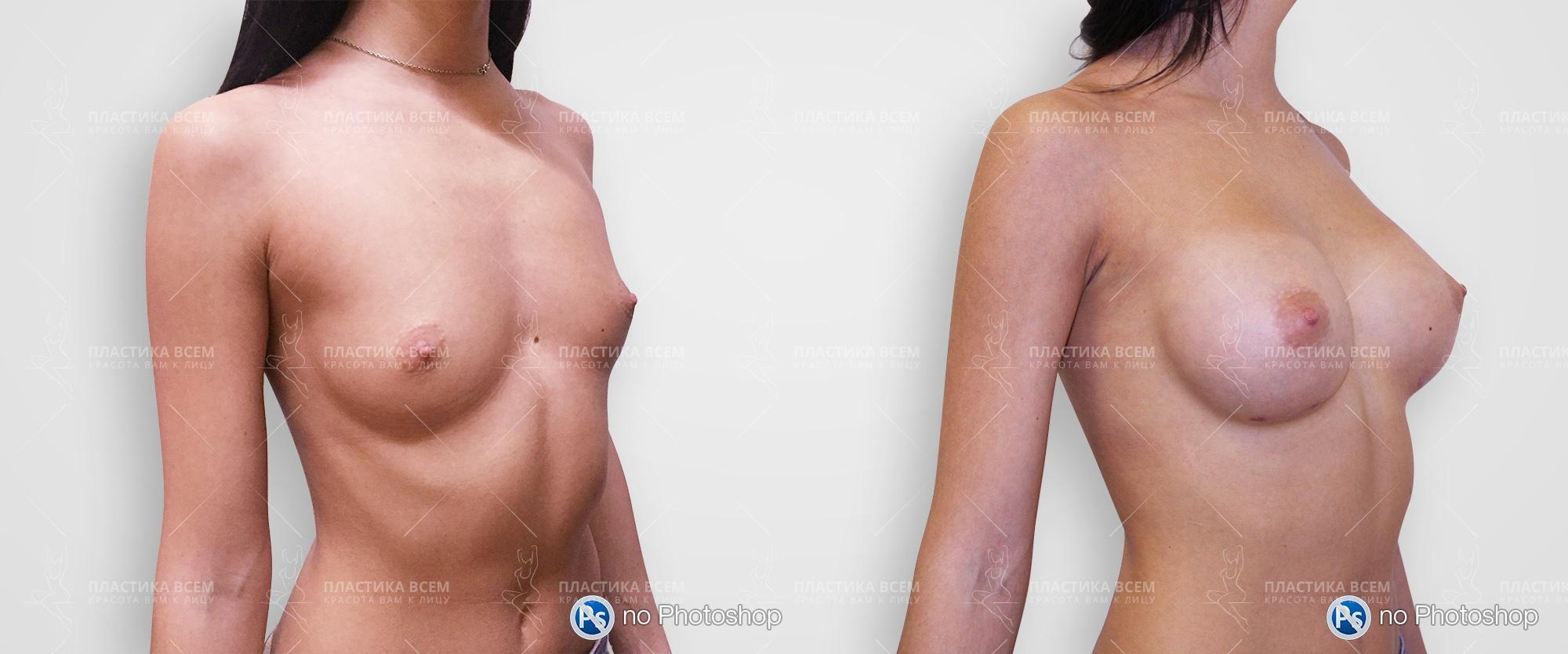 Реально ли увеличить грудь упражнениями